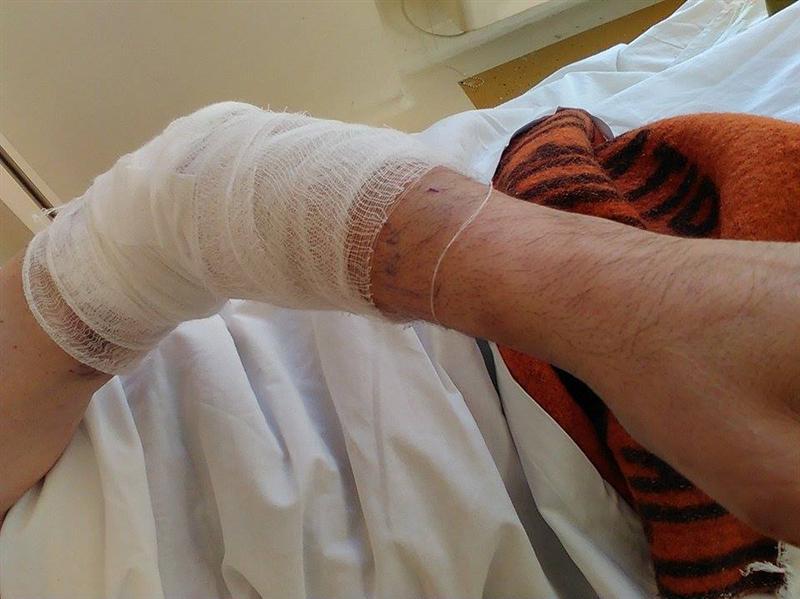 """Un minor din Oaș a ajuns la spital după ce a comis un accident de circulație. Medicii l-au """"pârât"""" la poliție"""